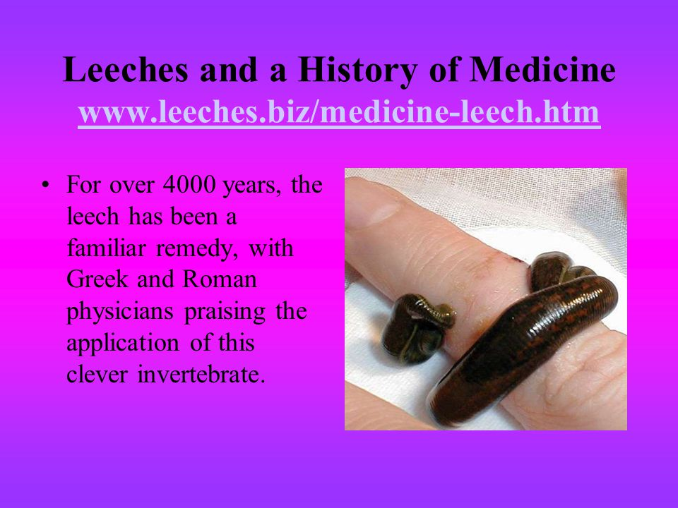 Leeches and a History of Medicine