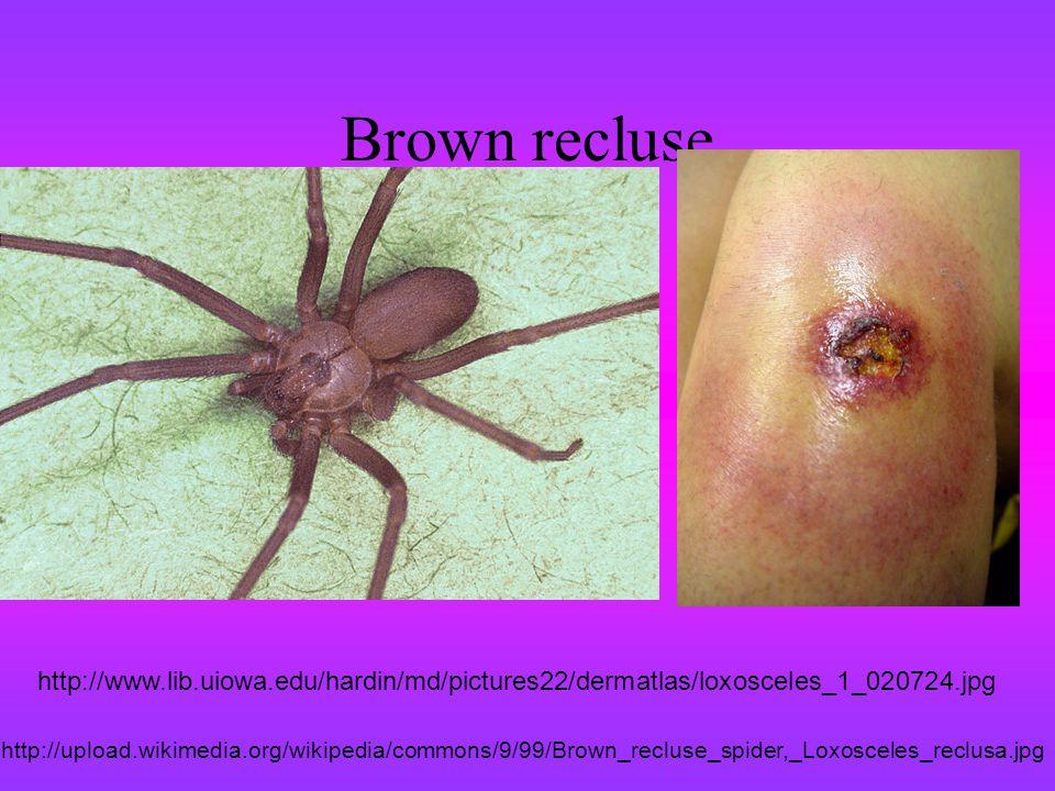 Brown recluse http://www.lib.uiowa.edu/hardin/md/pictures22/dermatlas/loxosceles_1_020724.jpg.