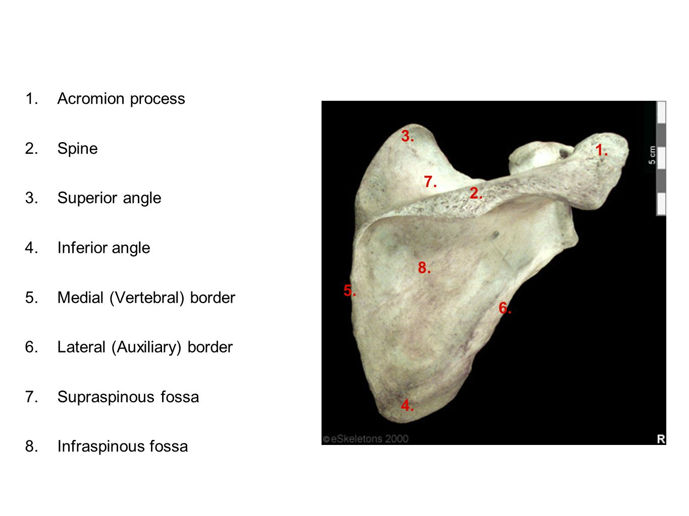 Acromion process Spine. Superior angle. Inferior angle. Medial (Vertebral) border. Lateral (Auxiliary) border.