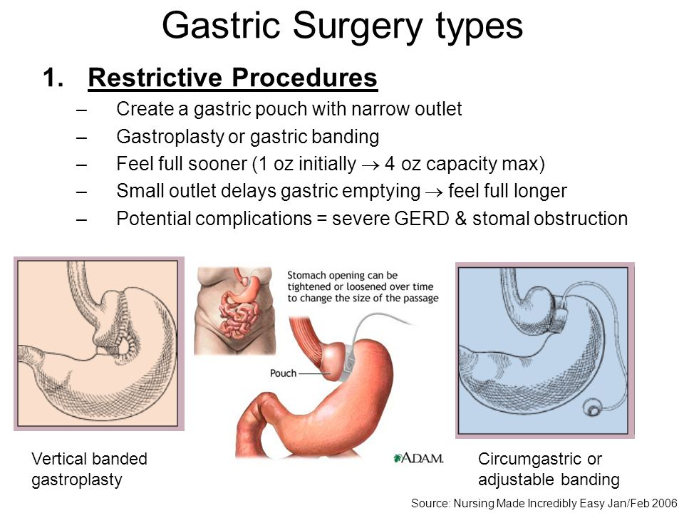 Gastric Surgery types Restrictive Procedures