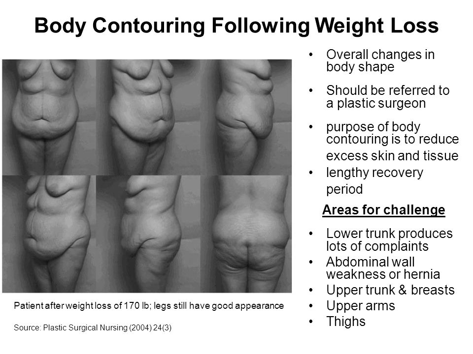 Body Contouring Following Weight Loss