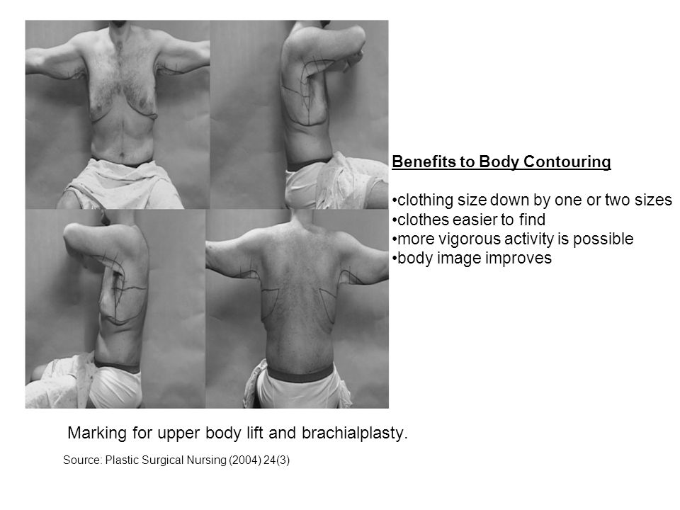 Marking for upper body lift and brachialplasty.
