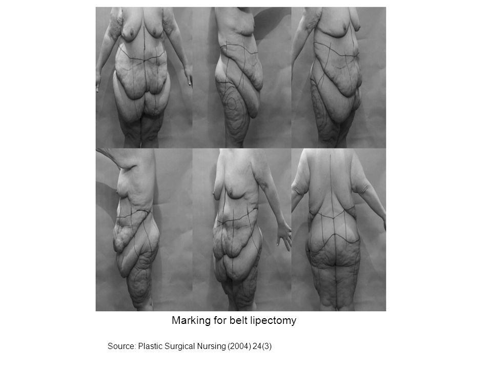 Marking for belt lipectomy
