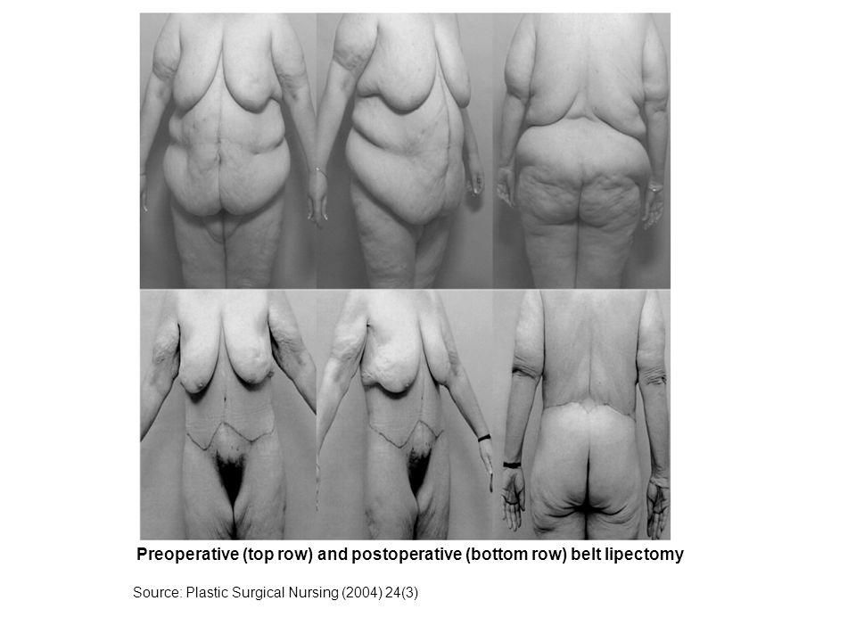 Preoperative (top row) and postoperative (bottom row) belt lipectomy