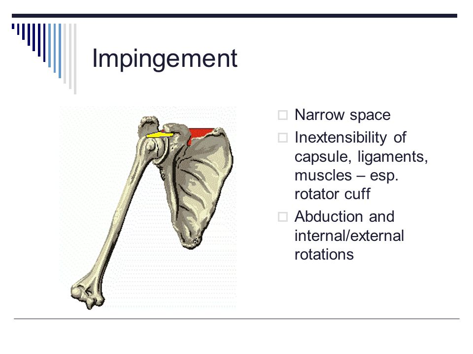 Impingement Narrow space
