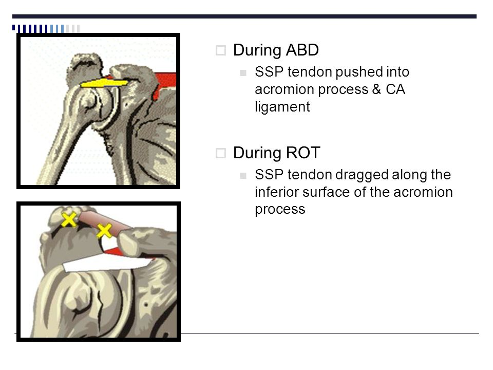 During ABD SSP tendon pushed into acromion process & CA ligament.