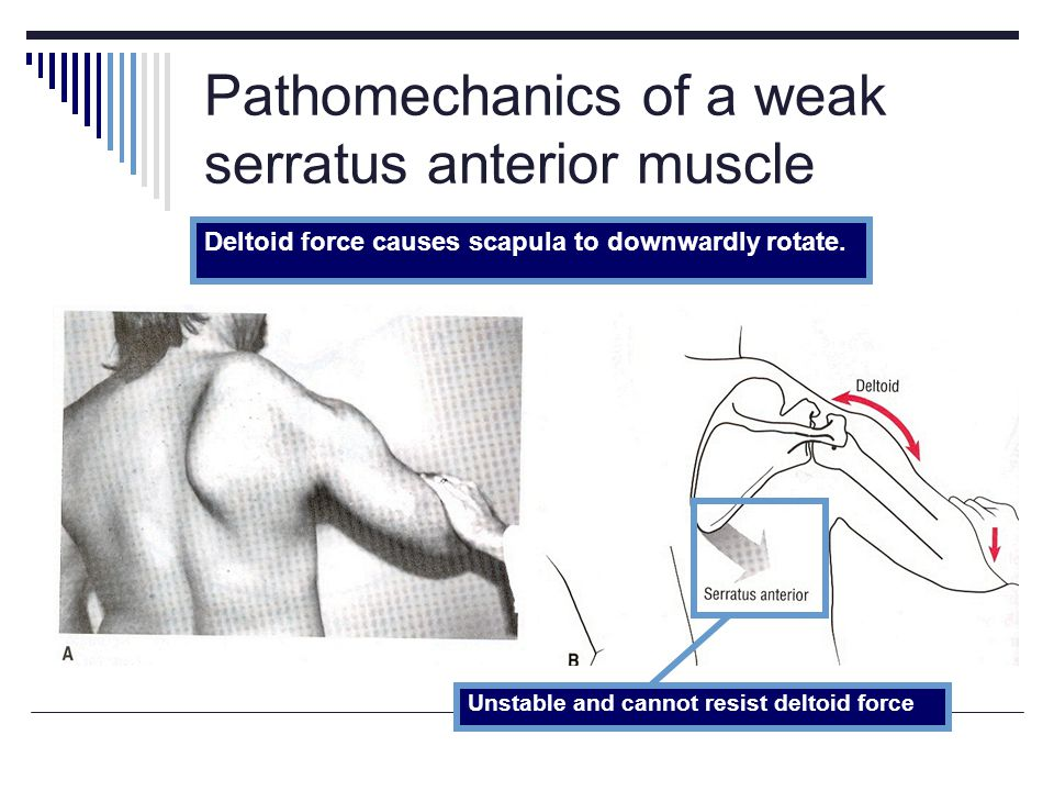 Pathomechanics of a weak serratus anterior muscle
