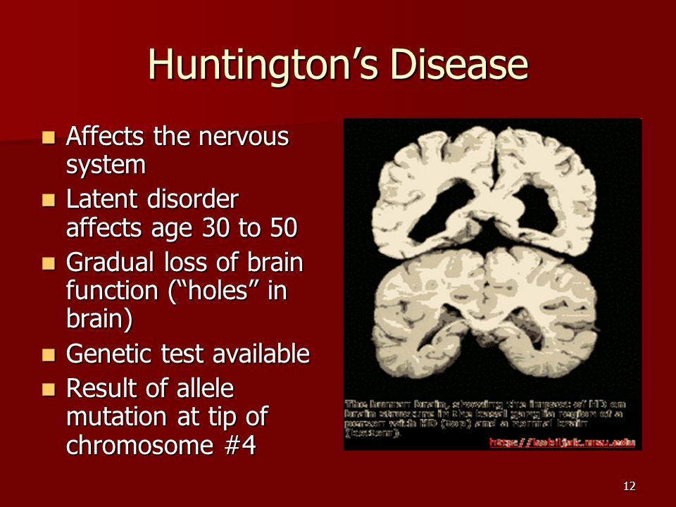 Huntington's Disease Affects the nervous system