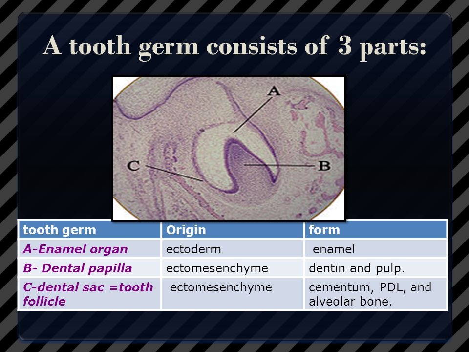 A tooth germ consists of 3 parts:
