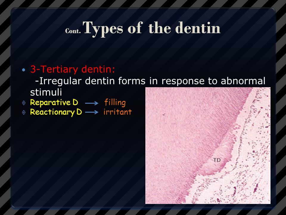 Cont. Types of the dentin