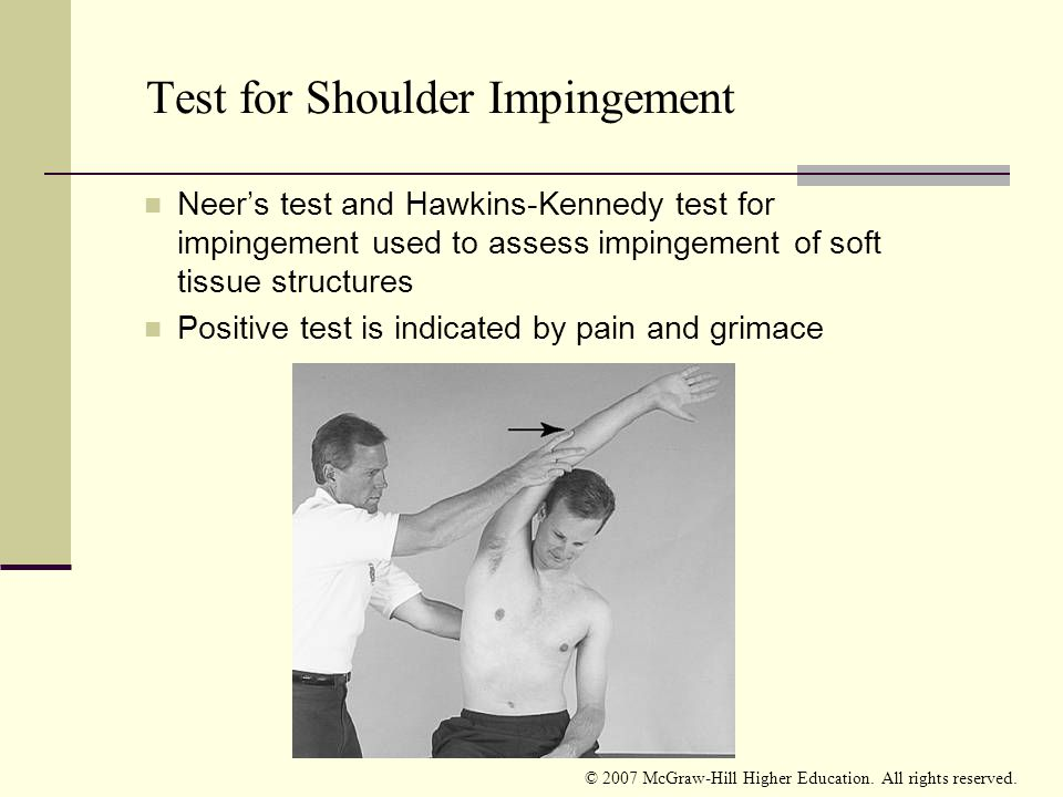 Test for Shoulder Impingement
