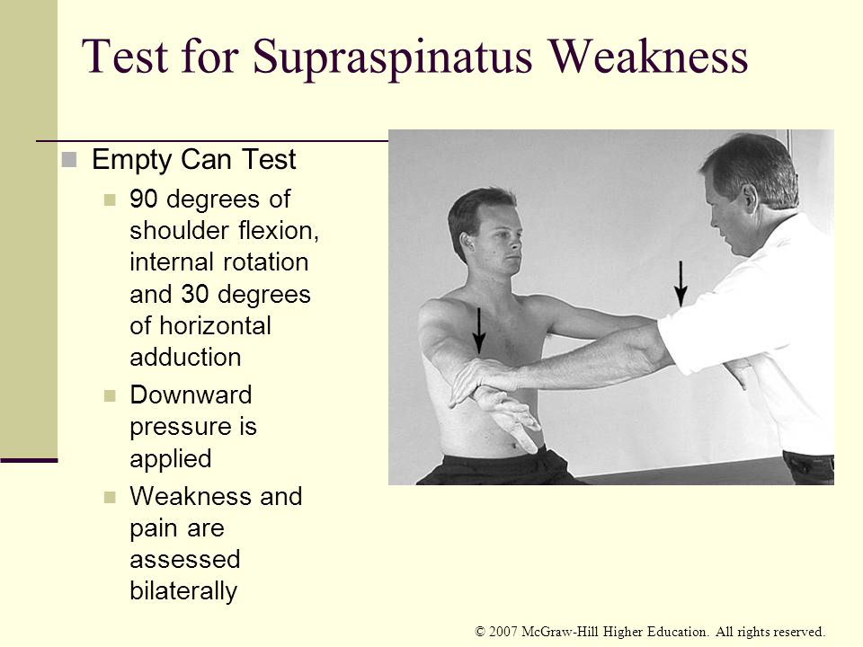 Test for Supraspinatus Weakness