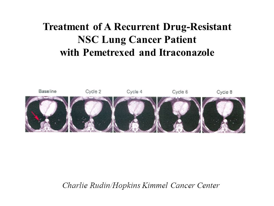 Treatment of A Recurrent Drug-Resistant NSC Lung Cancer Patient