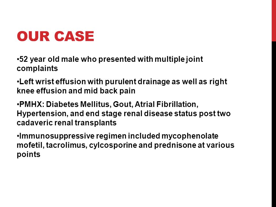 Our Case 52 year old male who presented with multiple joint complaints