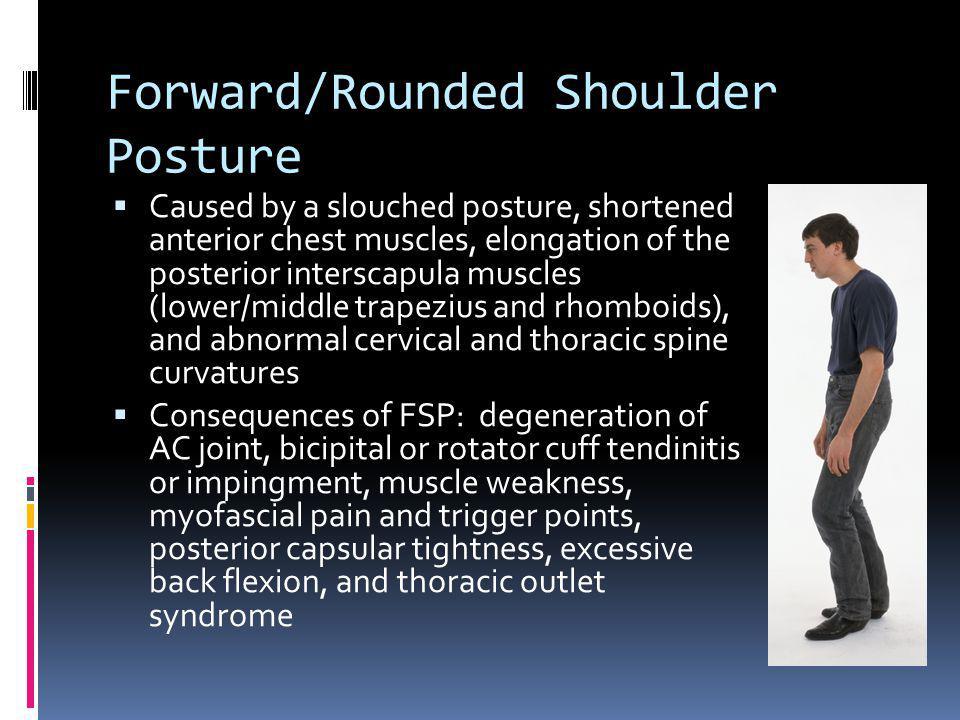 Forward/Rounded Shoulder Posture
