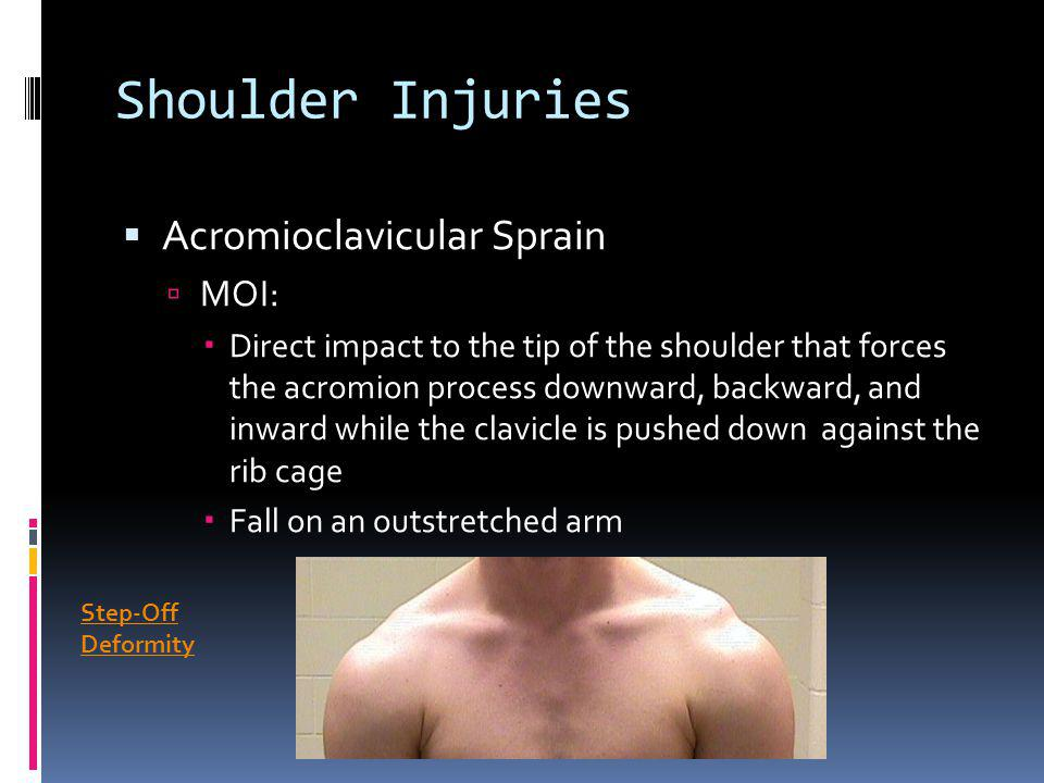 Shoulder Injuries Acromioclavicular Sprain MOI: