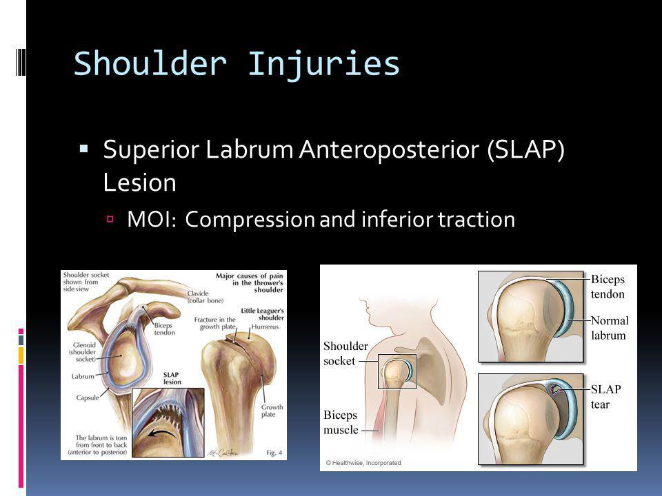 Shoulder Injuries Superior Labrum Anteroposterior (SLAP) Lesion