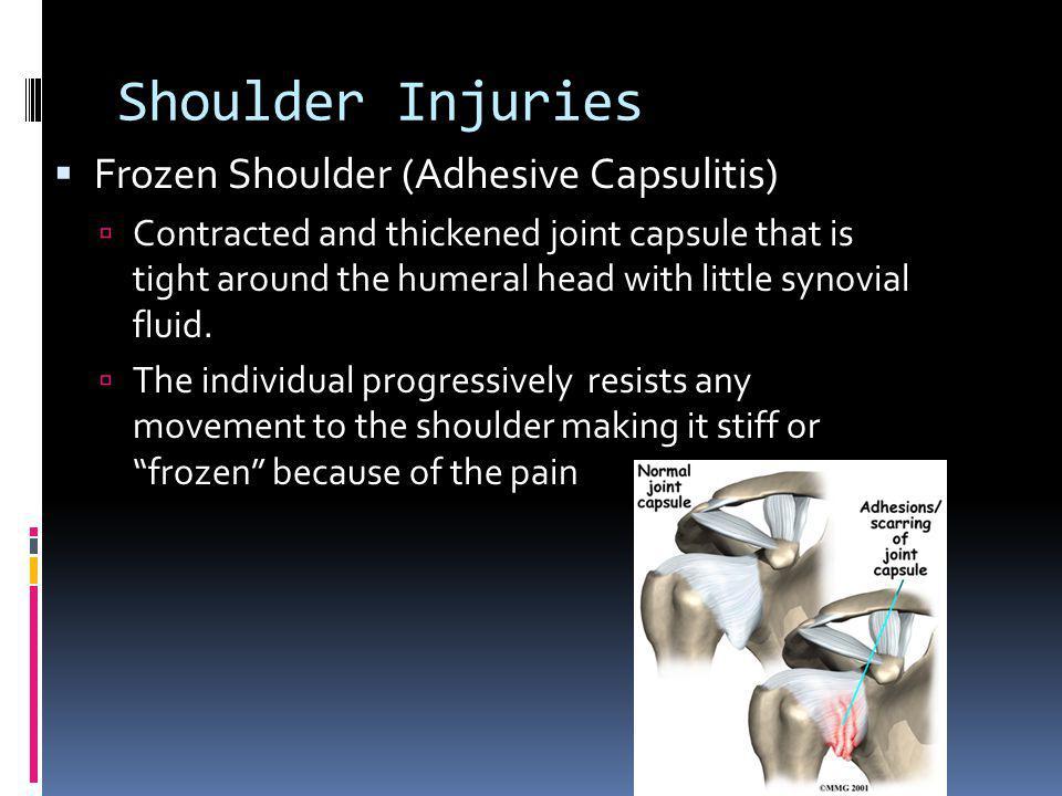 Shoulder Injuries Frozen Shoulder (Adhesive Capsulitis)