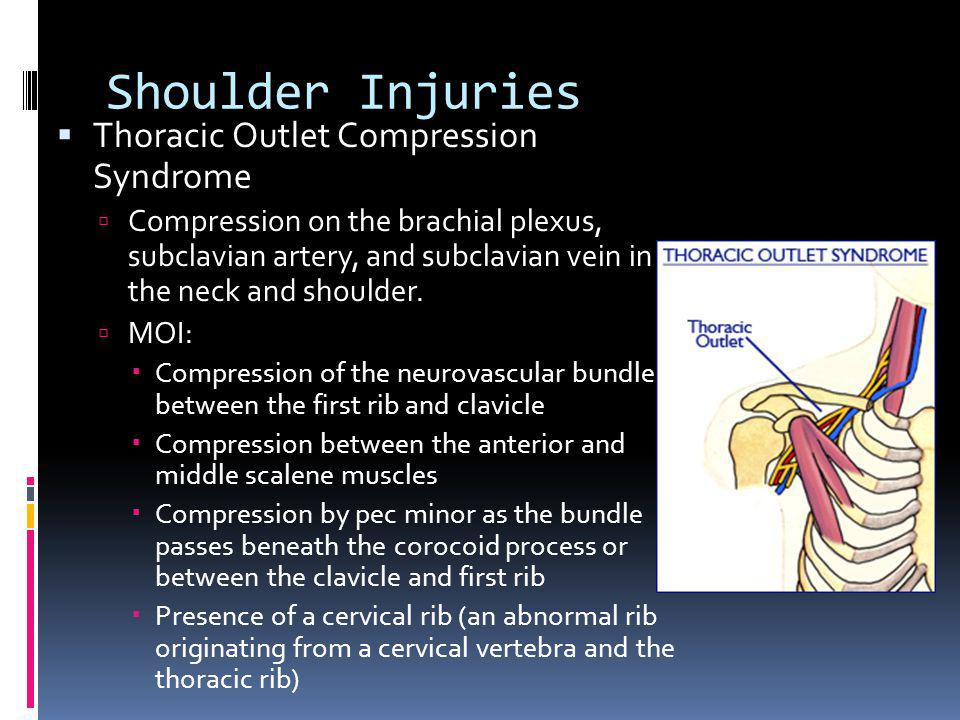 Shoulder Injuries Thoracic Outlet Compression Syndrome