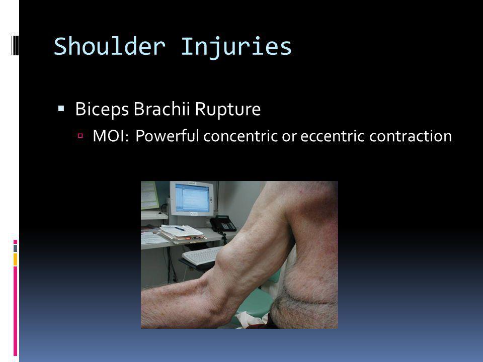 Shoulder Injuries Biceps Brachii Rupture