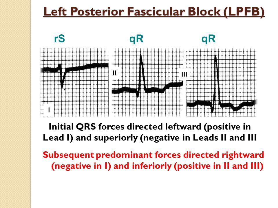 Left Posterior Fascicular Block (LPFB)