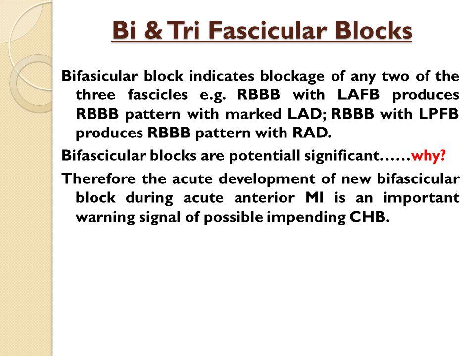 Bi & Tri Fascicular Blocks