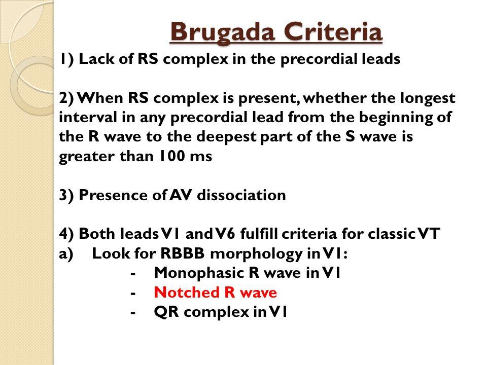 Brugada Criteria