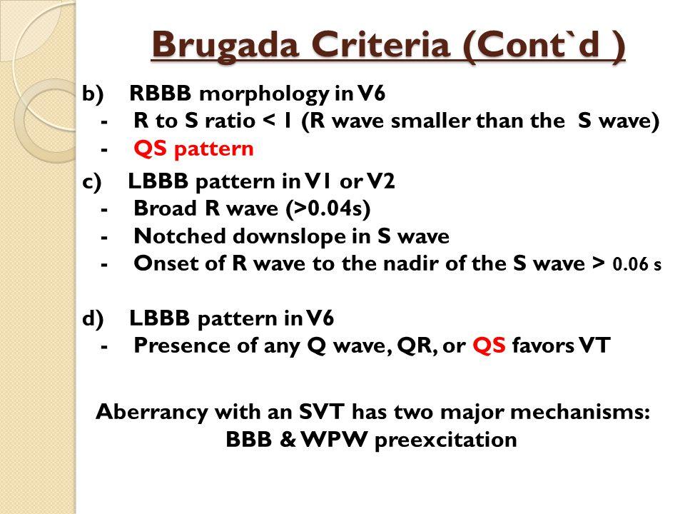 Brugada Criteria (Cont`d )