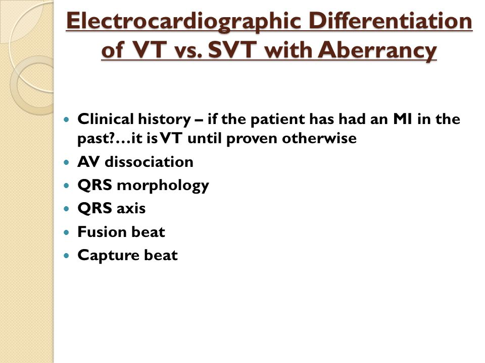 Electrocardiographic Differentiation of VT vs. SVT with Aberrancy