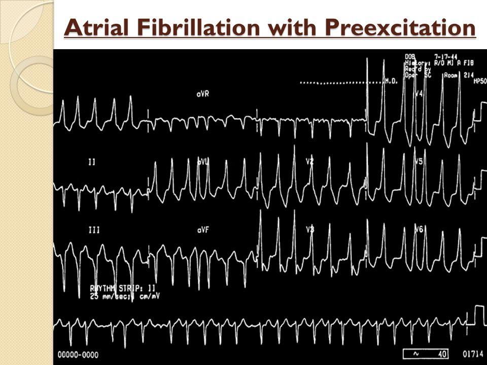 Atrial Fibrillation with Preexcitation