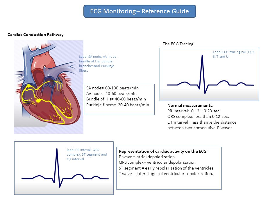 ECG Monitoring – Reference Guide