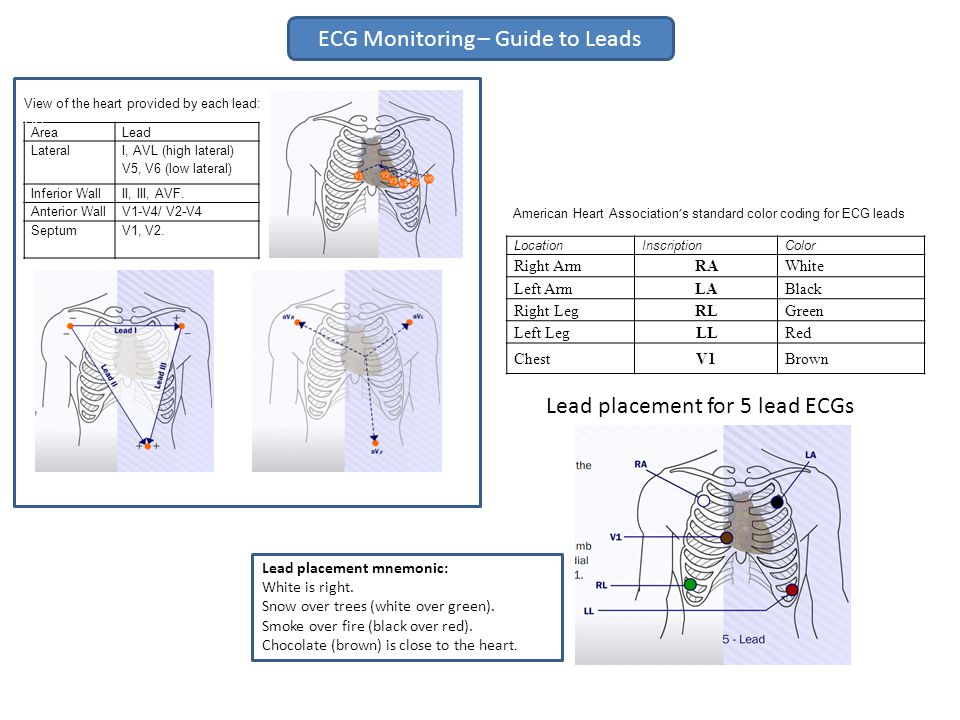 ECG Monitoring – Guide to Leads