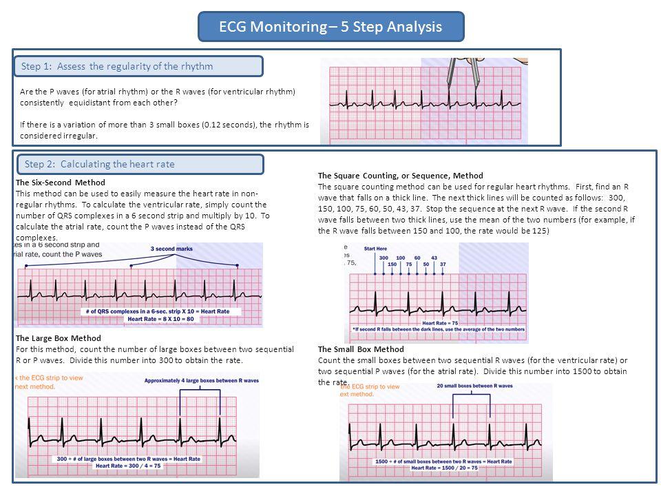 ECG Monitoring – 5 Step Analysis