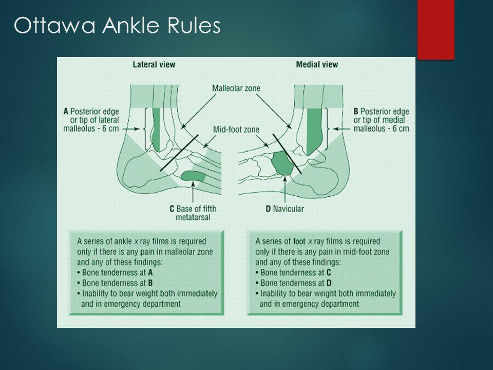 Ottawa Ankle Rules
