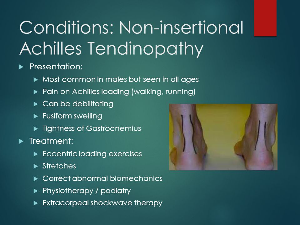 Conditions: Non-insertional Achilles Tendinopathy
