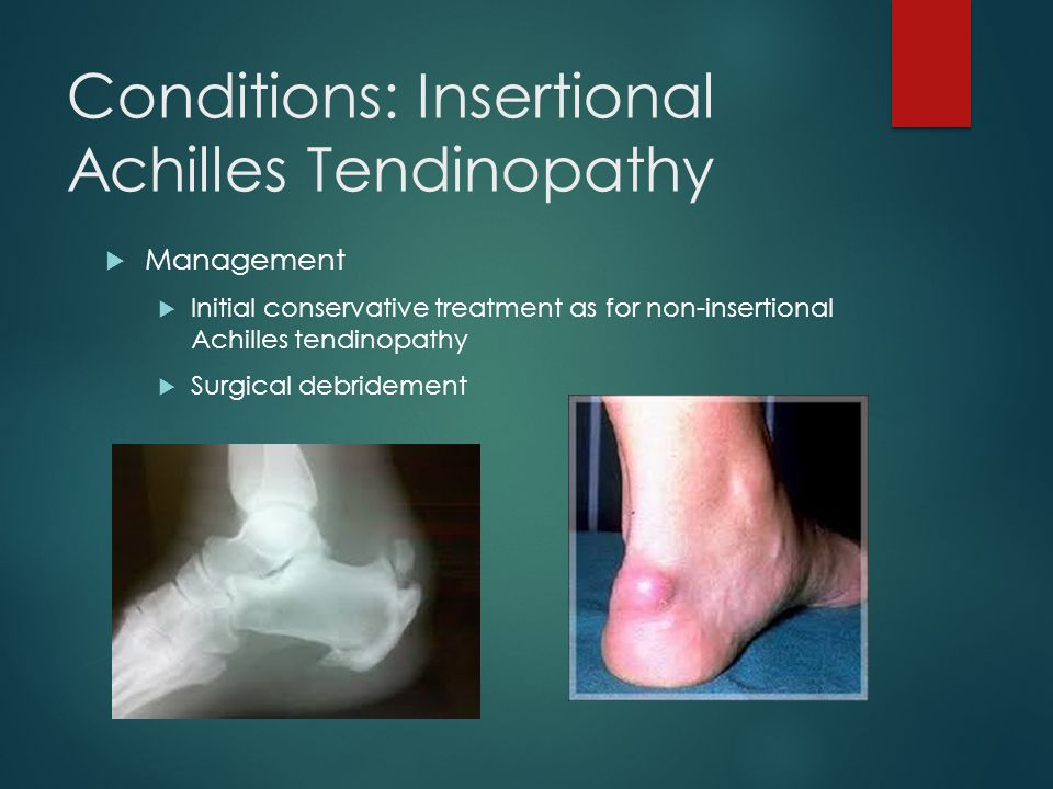 Conditions: Insertional Achilles Tendinopathy