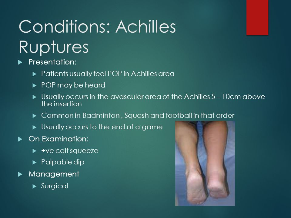 Conditions: Achilles Ruptures