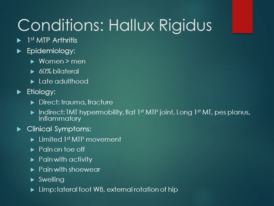 Conditions: Hallux Rigidus