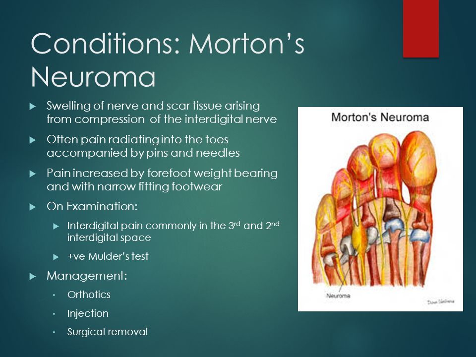 Conditions: Morton's Neuroma