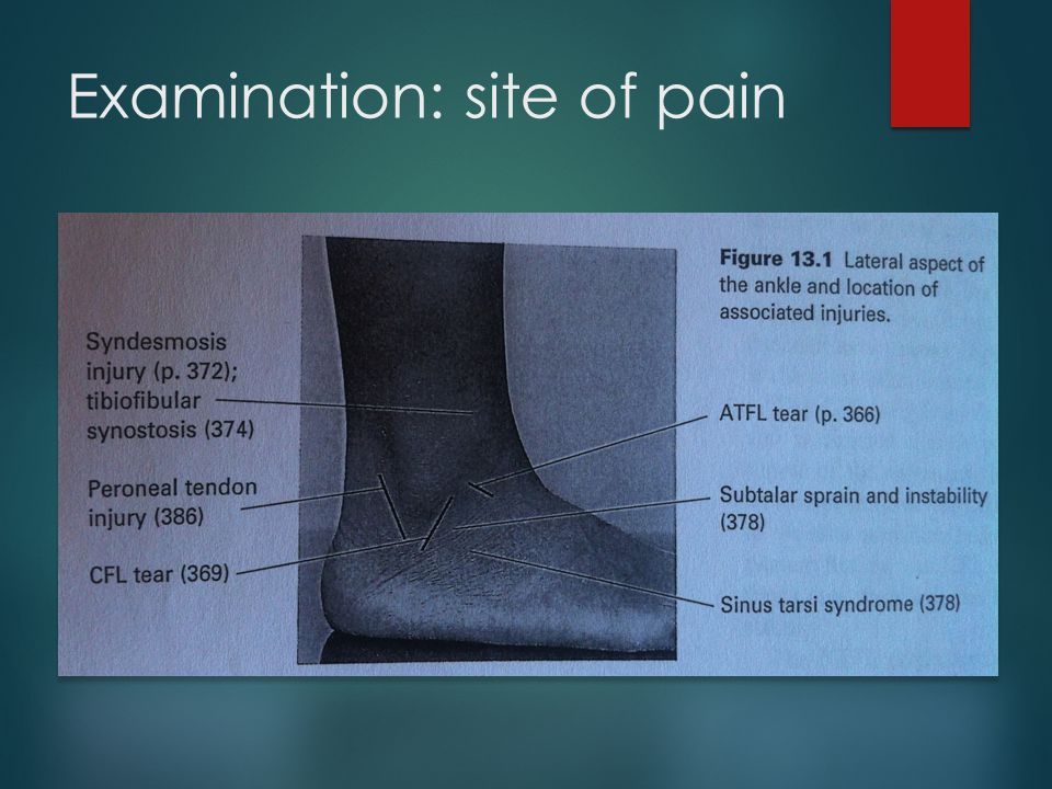 Examination: site of pain
