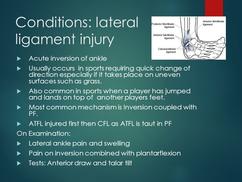 Conditions: lateral ligament injury