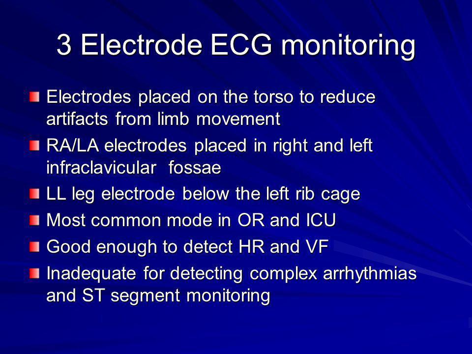 3 Electrode ECG monitoring