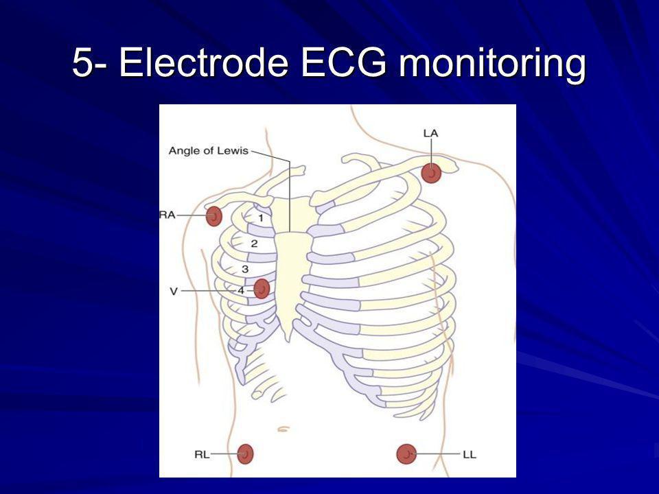 5- Electrode ECG monitoring