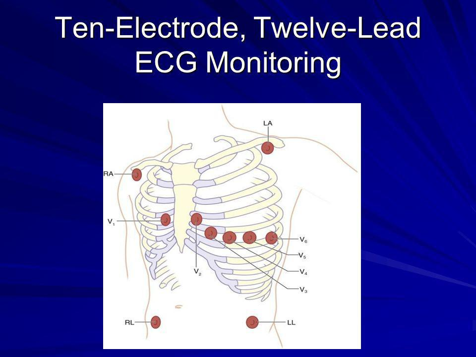 Ten-Electrode, Twelve-Lead ECG Monitoring