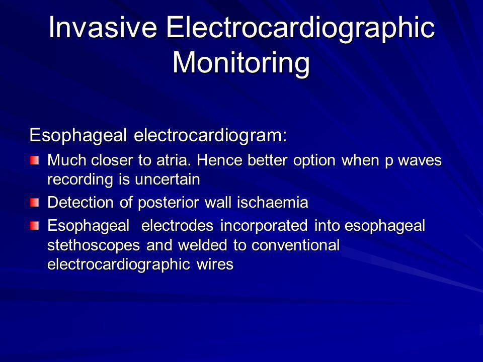Invasive Electrocardiographic Monitoring