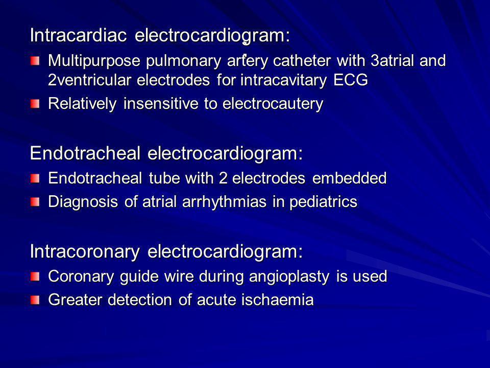 : Intracardiac electrocardiogram: Endotracheal electrocardiogram: