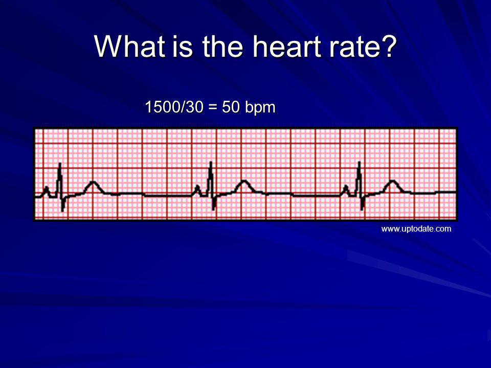 What is the heart rate 1500/30 = 50 bpm www.uptodate.com