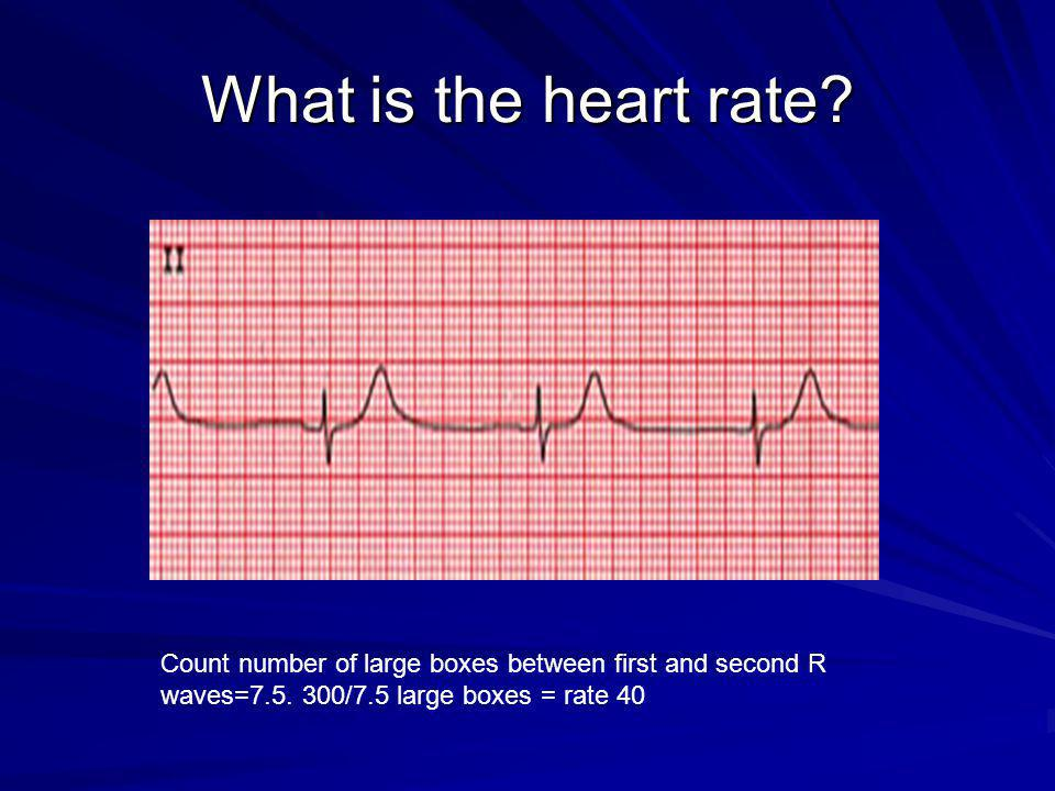 What is the heart rate. Count number of large boxes between first and second R waves=7.5.
