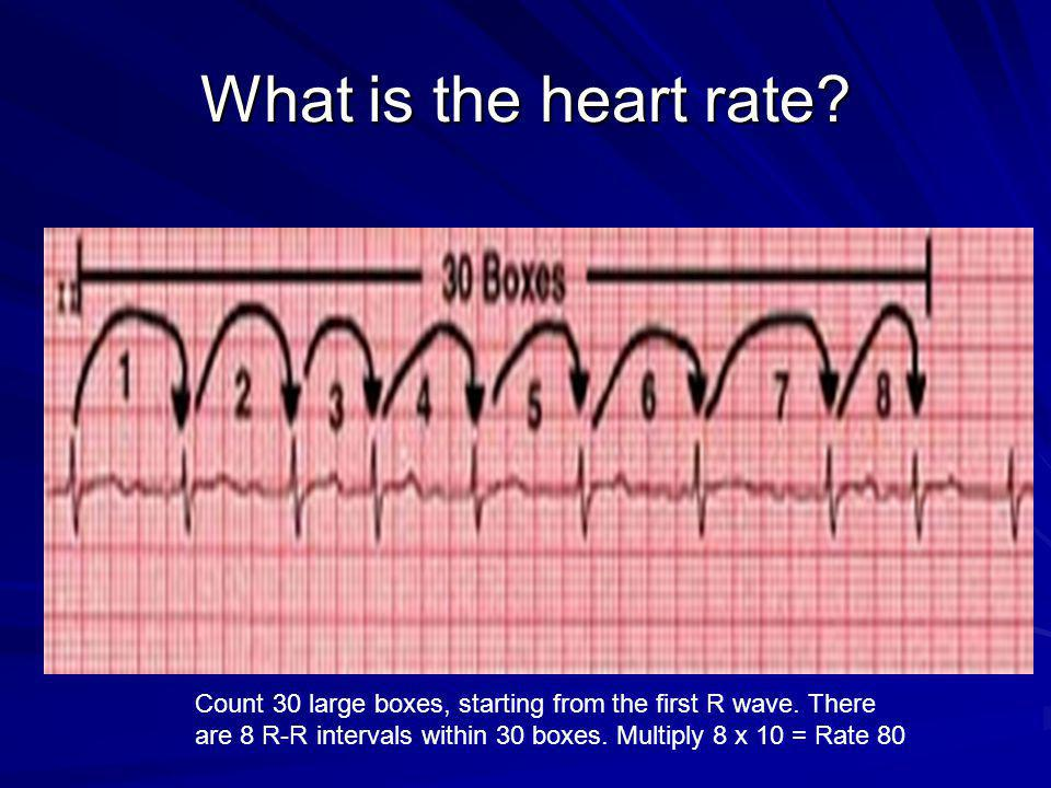 What is the heart rate. Count 30 large boxes, starting from the first R wave.