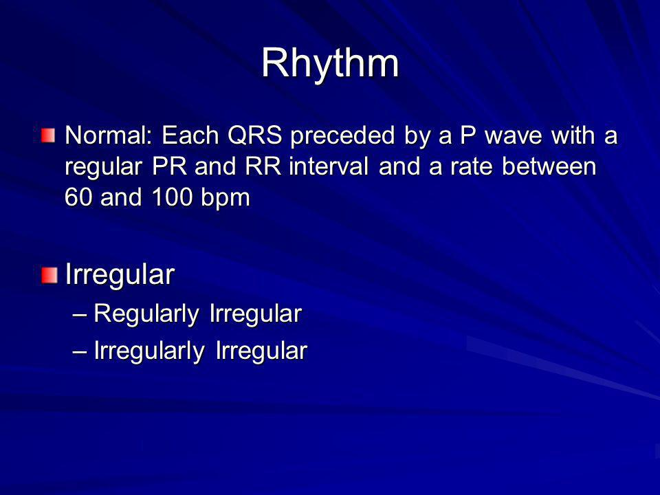 Rhythm Normal: Each QRS preceded by a P wave with a regular PR and RR interval and a rate between 60 and 100 bpm.